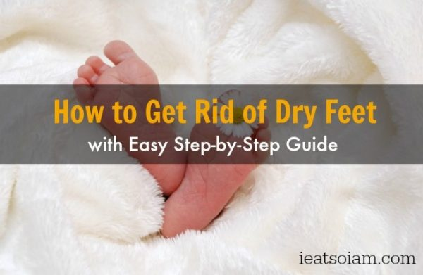 How to Get Rid of Dry Feet Easily