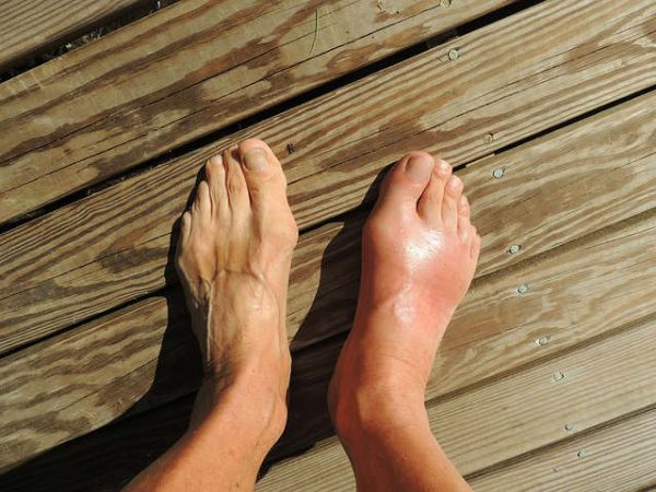 Best Essential Oils for Gout